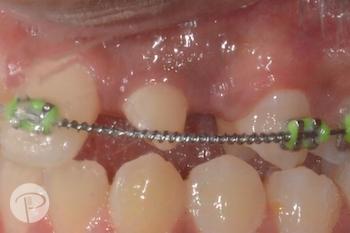 Putney-periodontics-Sydney-impacted-canine