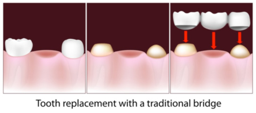 tooth replacement - traditional dental bridge north shore periodontics