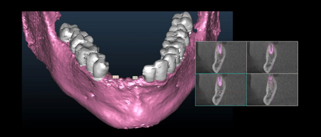 jawbone 3d imaging