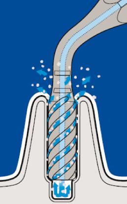 piezo-Putney-periodontics-Sydney